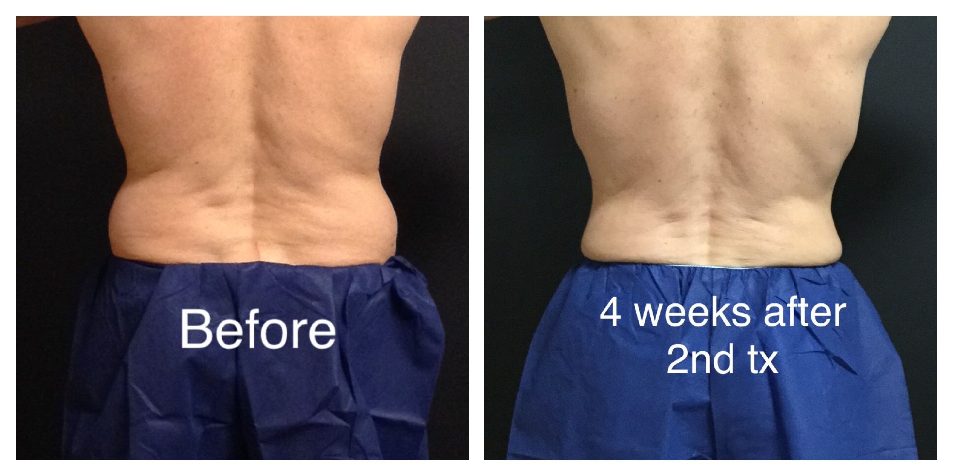Man's Back Before and After