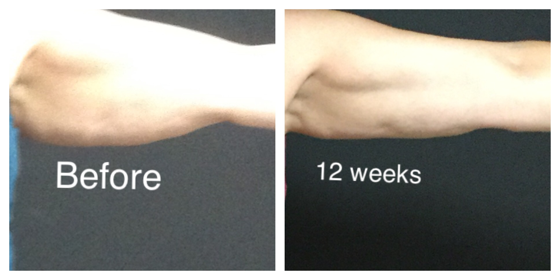 Man's Arm Before and After