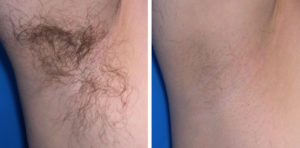 Laser Hair Removal In Utica Watertown And Rome Ny